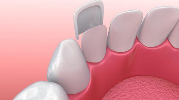 """שיפור המראה ע""""י ציפוי חרסינה לשיניים"""